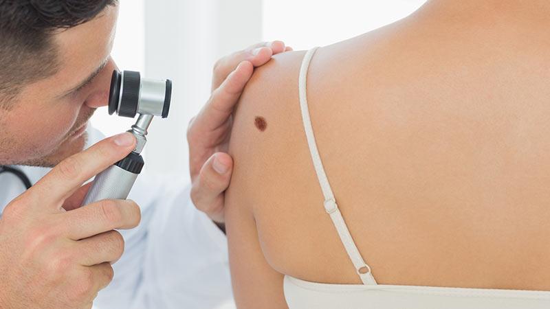 皮膚科医とホクロ